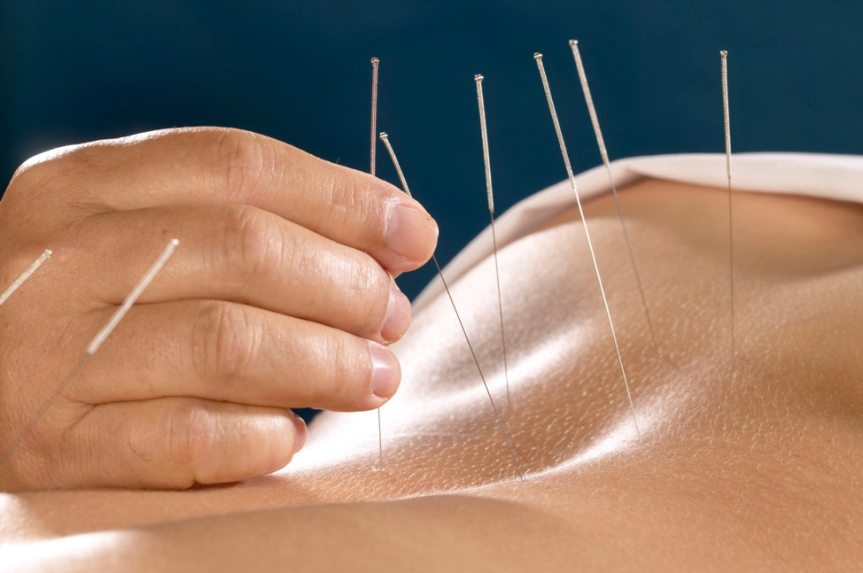 Most Common Reasons People Get Acupuncture